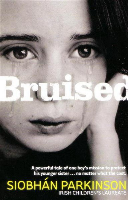 2 bruised